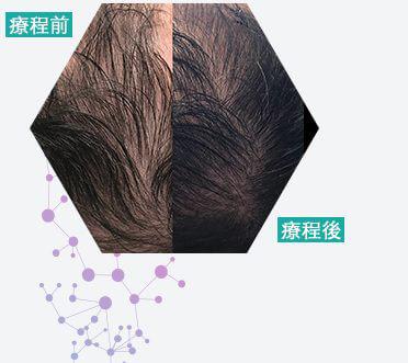 史雲遜 活囊肽生髮療程效果